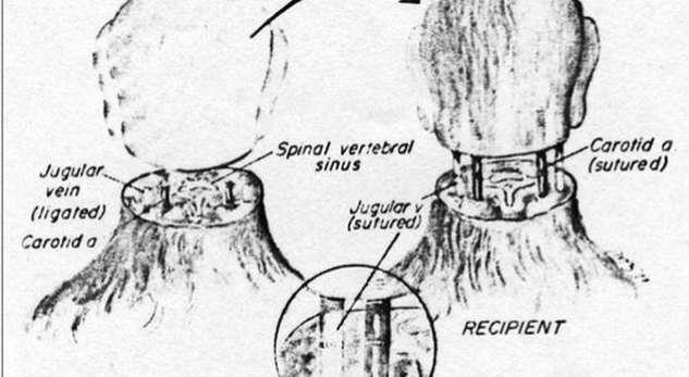 Transplanti i  plotë i kokës 16614010