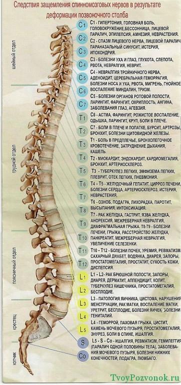 Боли в спине Aee142