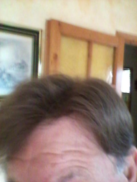 "Selfies ""photos""de ma première Nano-Peau 20150510"