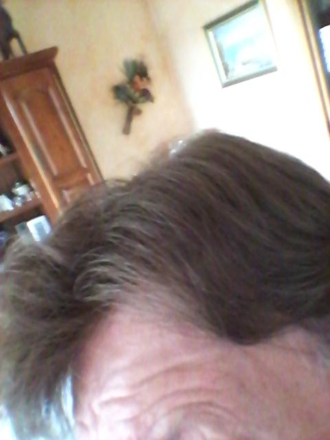 "Selfies ""photos""de ma première Nano-Peau 20150513"