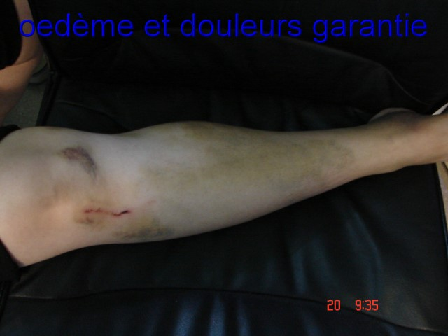 """accident moto """"ça n'arrive pas qu'aux autres"""" Dsc06511"""