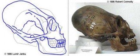 Etude sur prise de tête de nos ancêtres Elonga10