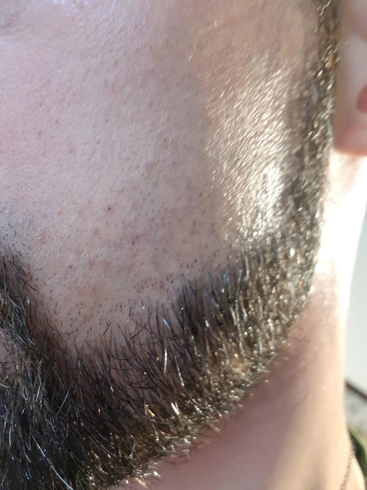 Premier test de shavette pour contours de barbe Img_2019