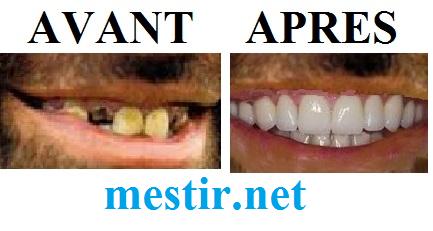 Astuce naturelle pour avoir des nouvelles dents bien blanches:  Tan10