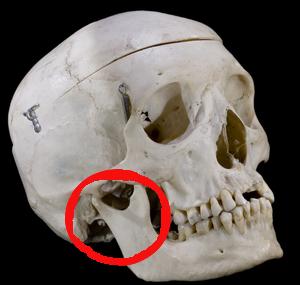 Dentaire, pas à pas. 300px-10