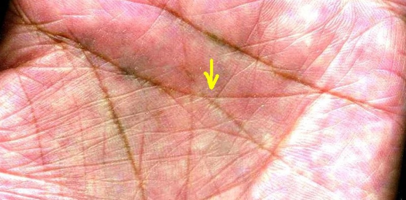 rhombus shaped LOOP formation along the lines of HEAD in the palm  Not-lh10