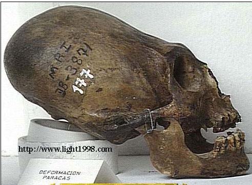 Première analyse de l'ADN du crâne allongé de Paracas révélée – avec des résultats incroyables  Cranep10