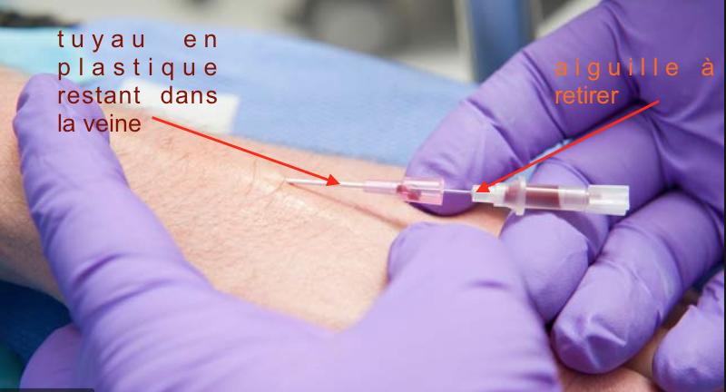 Présentation du matériel médical [CHU] Aide pour les RP !  Captu888