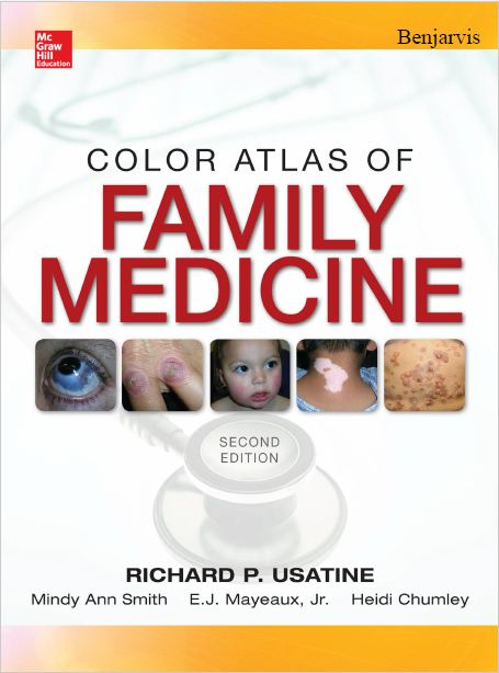 Usatine RP, Smith MA, Mayeaux EJ, Jr., Chumley HS, ed. Color Atlas of Family Medicine. 2nd ed. United States: McGraw-Hill Education; 2013. 1600 p. The_co11