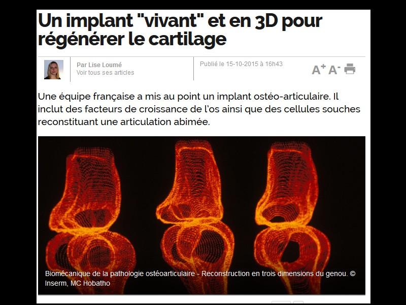 """Un implant """"vivant"""" et en 3D pour régénérer le cartilage Sans_265"""