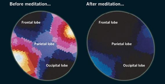 Un scientifique explique que la méditation modifie le cerveau 8d6c6410