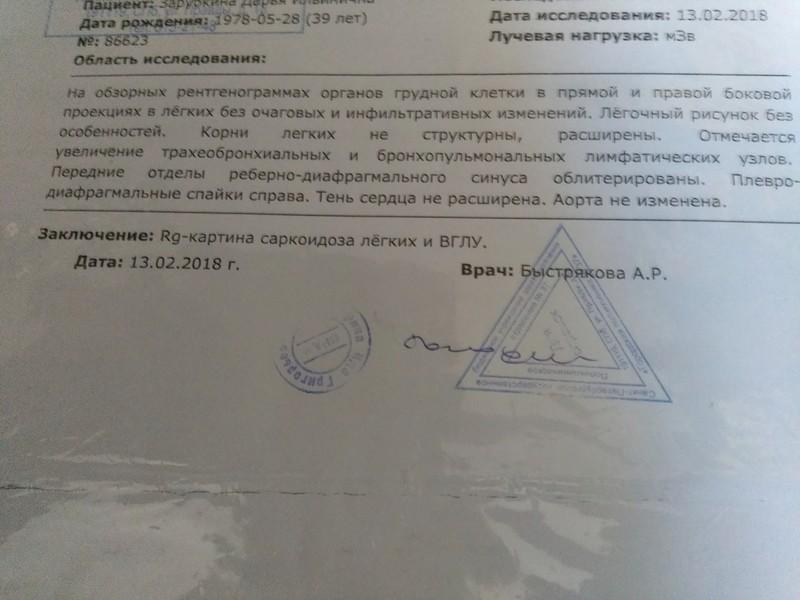 Спицы Киршнера и саркоидоз 20180310