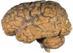 le cerveau Humain10