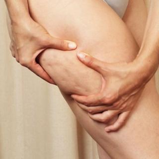 La cellulite, ou peau d'orange: origine et conseils Cellul10