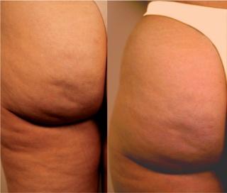 La cellulite, ou peau d'orange: origine et conseils What-i11