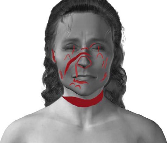 Facial wounds (Jack applying beauty surgery) Facial10