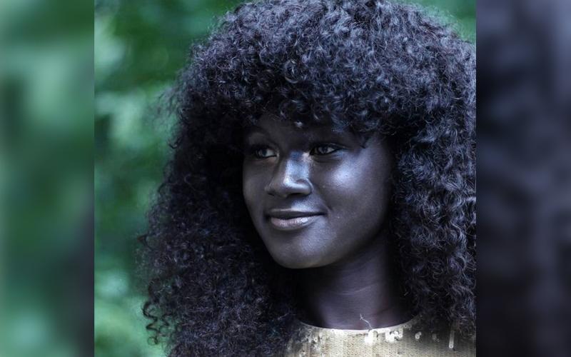 Son los Sursudaneses las personas con la piel más oscura del mundo? Meet-t10