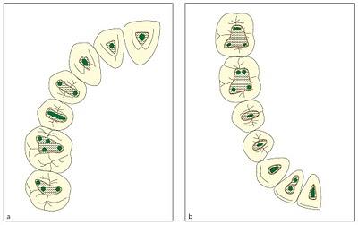 La cavité d'accés en endodontie Access10