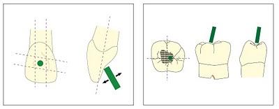 La cavité d'accés en endodontie Sans_t15
