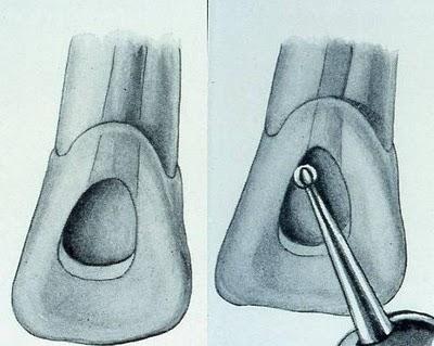 La cavité d'accés en endodontie Sans_t16