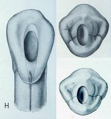 La cavité d'accés en endodontie Sans_t17