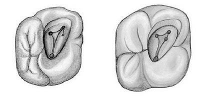 La cavité d'accés en endodontie Sans_t18