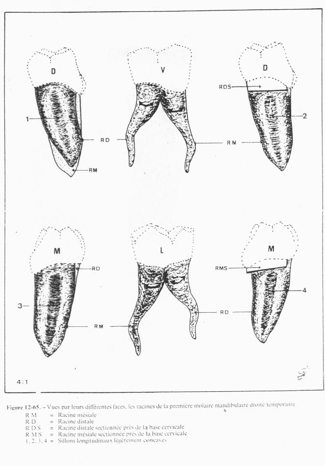 anatomie - Anatomie des molaires temporaires Mol10