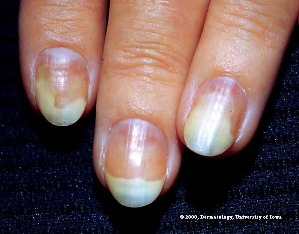 Fungus on Nail (Onychomycosis) Onycho10
