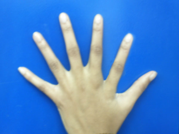 Assignment 6: Digital Manipulation (6 fingers). Due Sep 21. 6finge10