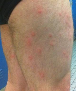 FEEDBACK - ODAN 29/05/11 - Mosquito Day Photo111