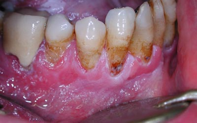 muqueuse - Pathologie de la muqueuse buccale: leucoplasie, aphtes, Maladie de Kaposi  1010
