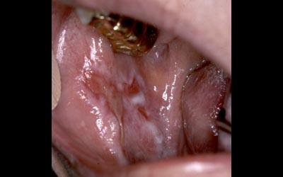 muqueuse -  Pathologie de la muqueuse buccale. Lichen. 110