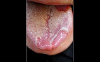 buccale - Pathologie de la muqueuse buccale: série 5 2110