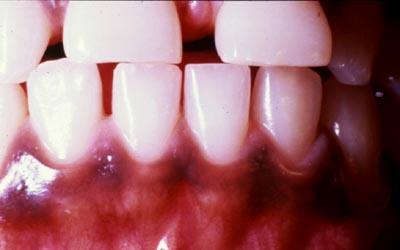 muqueuse - Pathologie de la muqueuse buccale: série 5 2410