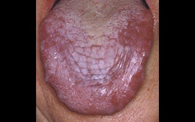 muqueuse -  Pathologie de la muqueuse buccale. Lichen. 310