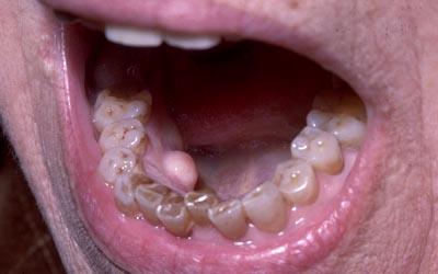 buccale - Pathologie de la muqueuse buccale: série 6  3410