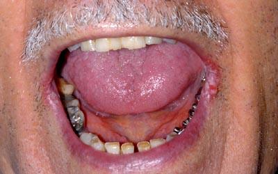 buccale - Pathologie de la muqueuse buccale: série 7  3710
