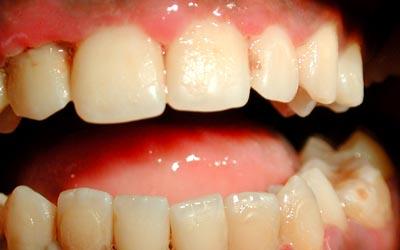 buccale - Pathologie de la muqueuse buccale: série 7  3911