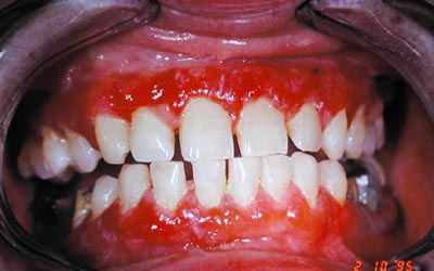 muqueuse -  Pathologie de la muqueuse buccale. Lichen. 5_10