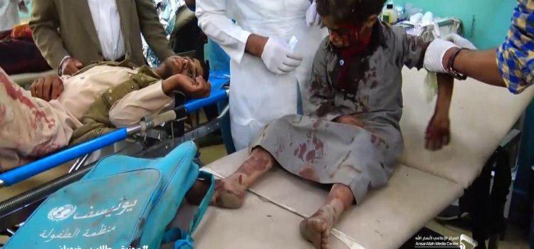 رسالة الى مجلس الأمن _ فى مجزرة تنفذها السعودية والامارات فى _اطفال اليمن47شهيداً و77 جريحاً  110