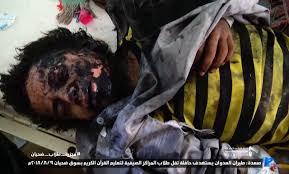 رسالة الى مجلس الأمن _ فى مجزرة تنفذها السعودية والامارات فى _اطفال اليمن47شهيداً و77 جريحاً  1110