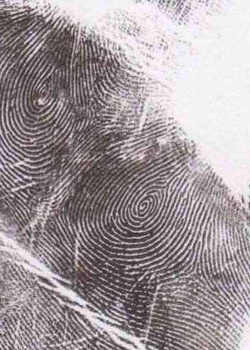 unusual palmar dermatoglyphics 24_fem11