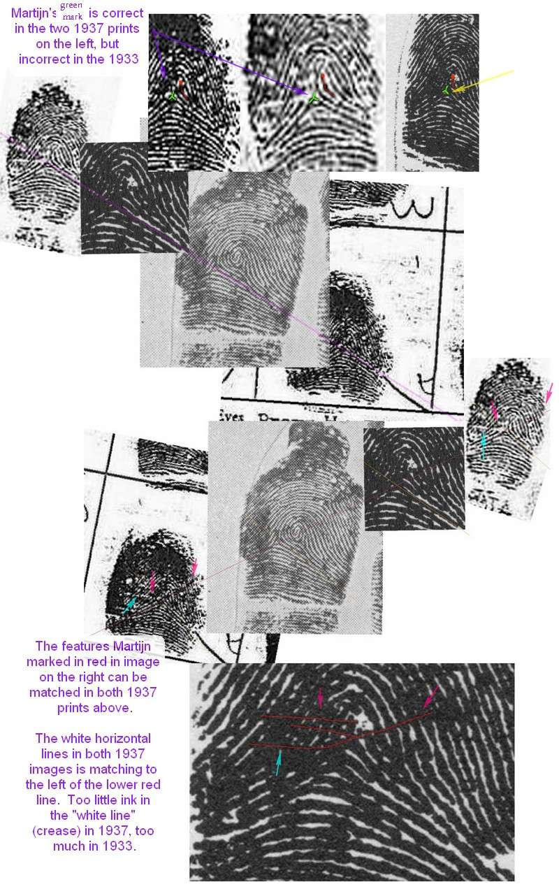 X - WALT DISNEY - One of his fingerprints shows an unusual characteristic! - Page 7 A_disn18