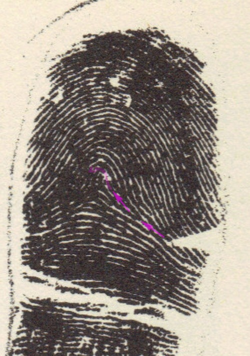 X - WALT DISNEY - One of his fingerprints shows an unusual characteristic! - Page 5 A_ridg10