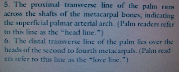 How to discriminate a simian crease from a Sydney line and a Suwon crease! - Page 3 Distal15