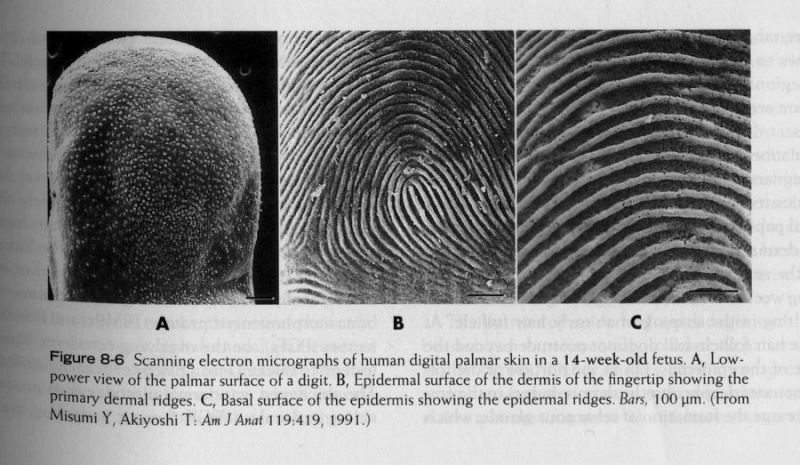 The TRIRADIUS in a fingerprint: how it develops, it's characteristics + a definition! - Page 16 Finger11