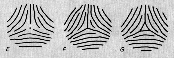 The TRIRADIUS in a fingerprint: how it develops, it's characteristics + a definition! - Page 15 Penros10