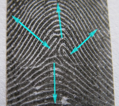 The TRIRADIUS in a fingerprint: how it develops, it's characteristics + a definition! - Page 12 Tensio11
