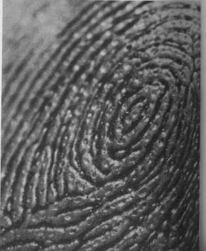 The TRIRADIUS in a fingerprint: how it develops, it's characteristics + a definition! - Page 16 Triang12