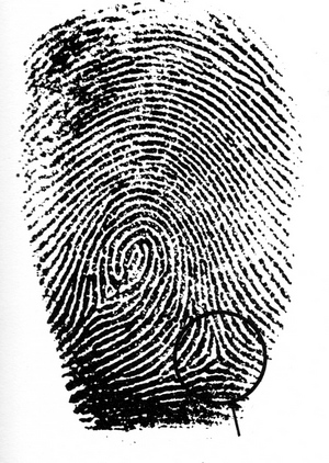 The TRIRADIUS in a fingerprint: how it develops, it's characteristics + a definition! - Page 16 Trirad20